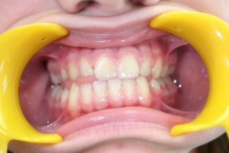 orthodontiste posture Caen