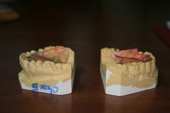 appareil dentaire, orthodontiste Caen