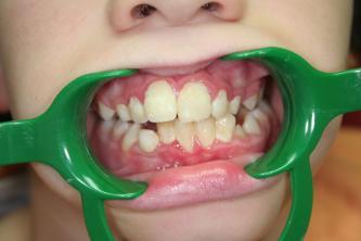 Chirurgien dentiste Caen, Mondeville