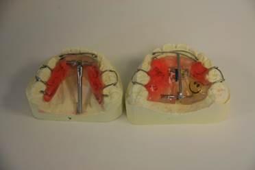 orthodontiste, appareil dentaire Caen