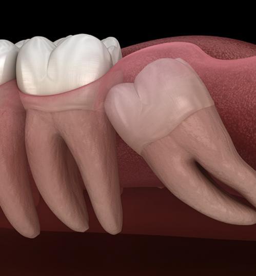 dents de sagesse