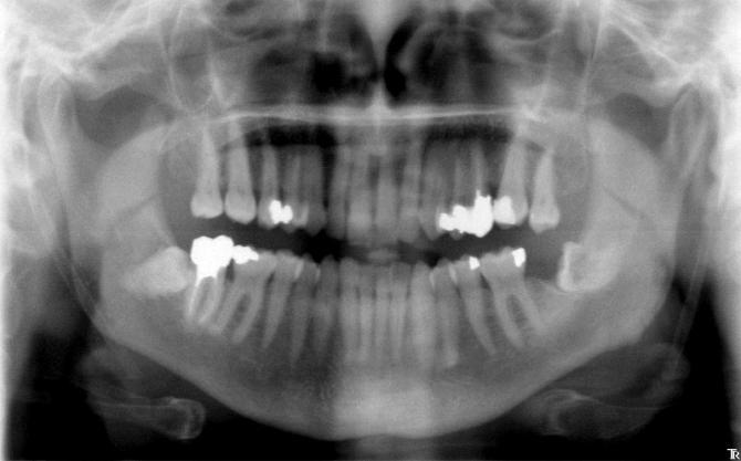 Dents de sagesses inférieures incluses horizontales